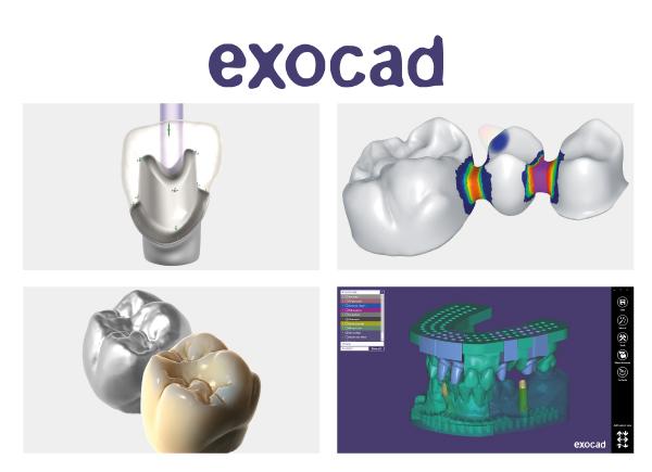 Exocad®