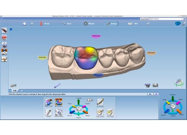 Planmeca CAD/CAM ordinační software PlanCAD Easy
