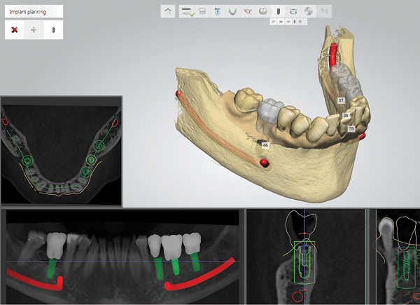 3Shape Implant Studio®