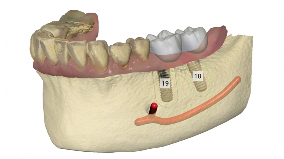 3Shape Implant Studio<sup>®</sup>