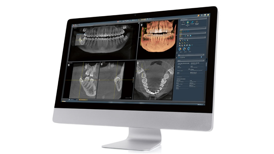 Carestream Imaging software