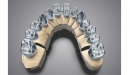 DWOS (Dental Wings Open System)