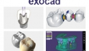 Exocad<sup>®</sup>